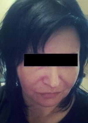 45-летняя сисястая медсестра