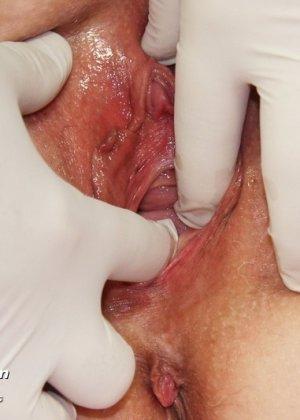 Пожилая женщина приходит на гинекологический осмотр и мужчина профессионально проводит прием - фото 4