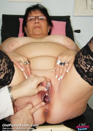 Пожилая женщина приходит на гинекологический осмотр и мужчина профессионально проводит прием - фото 9