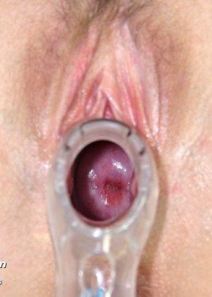 Гинеколог очень любит рассматривать женские влагалища, поэтому делает это с особым удовольствием - фото 11