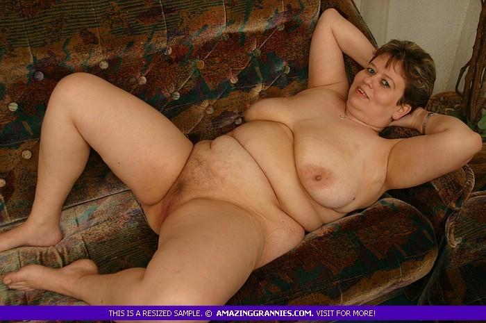 Жирная женщина с редкими волосами на лобке