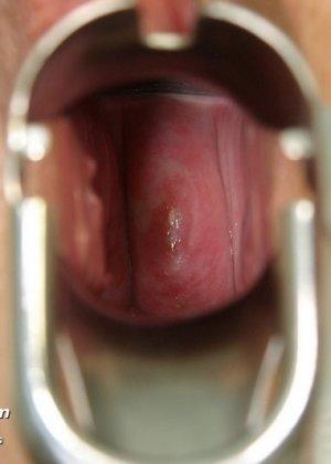 Пожилая дама на обследовании гинеколога - фото 12
